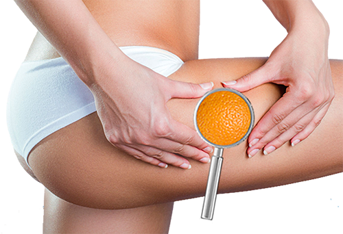 Cellulite, peau d'orange